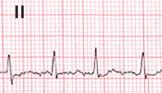 A Man with Atrial Fibrillation, Depression, and Anxiety