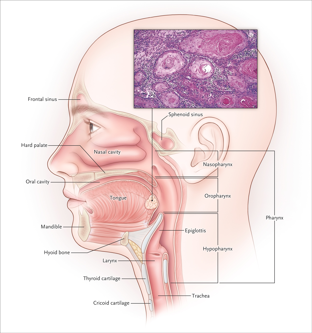Hpv positive oropharyngeal cancer