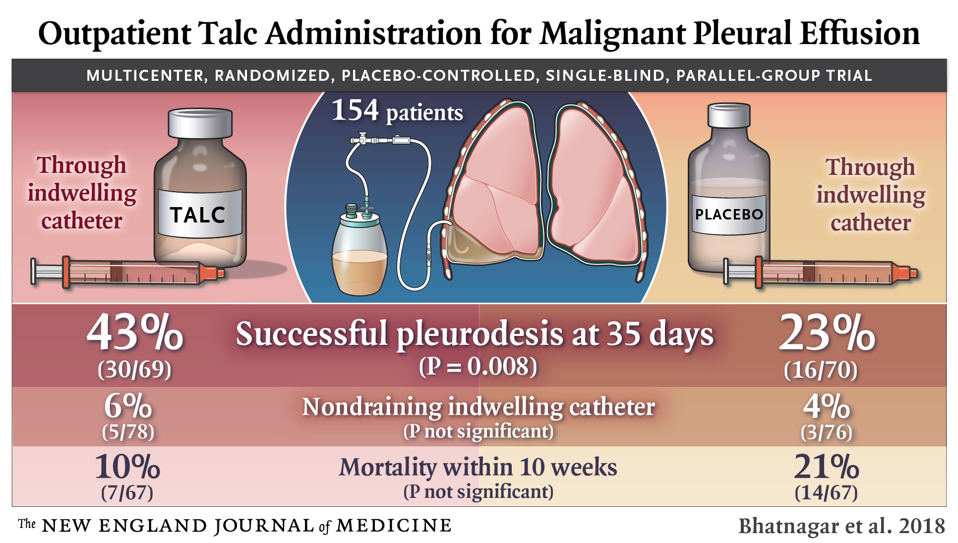 Outpatient Talc Administration for Malignant Pleural ...